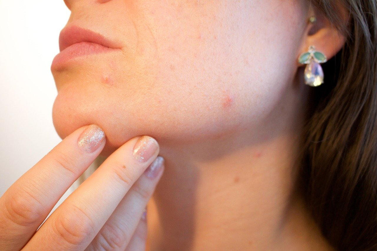 Feiten en fabels over acne